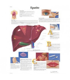 Tavola anatomica poster EPATITE