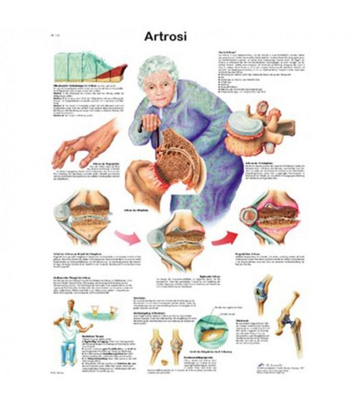 Poster anatomico artrosi