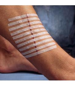 Cerotto sutura STERI STRIP 3M R1546 dimensione 100X6 mm confezione 10 pezzi